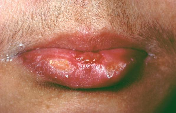 The chances Herpes sores on mouth
