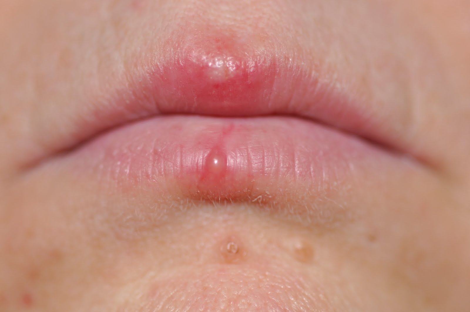 People are wondering how to get rid of cold sores overnight cold sores