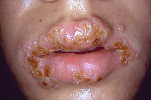 Home Remedies For Cold Sores In Lips