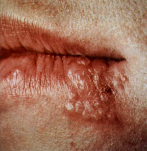 Lip Sore - Symptoms, Causes, Treatments - Healthgrades.com